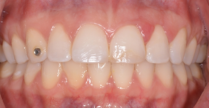 Teeth and gums after crown lengthening treatment