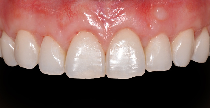 Teeth and gums after gum graft procedure