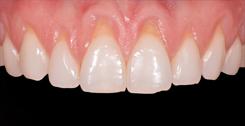 Teeth and gums before gum graft procedure