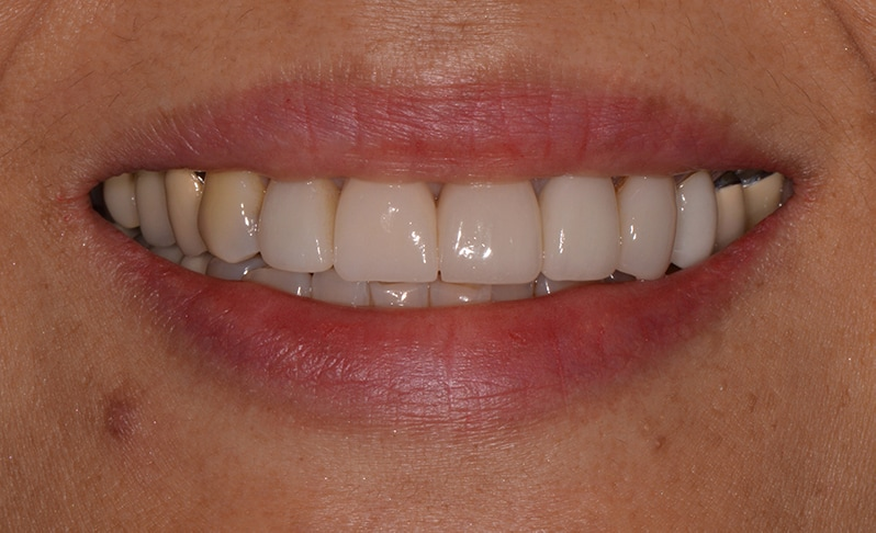 Mouth after dental implant placed