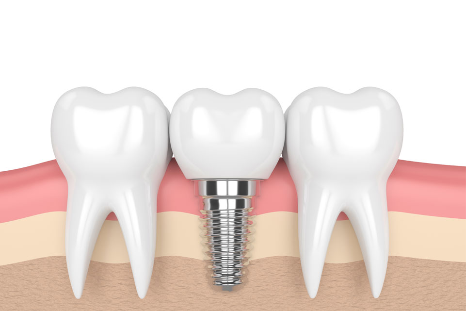 dental implant illustration