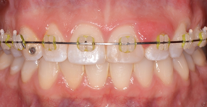 Teeth and gums before crown lengthening treatment